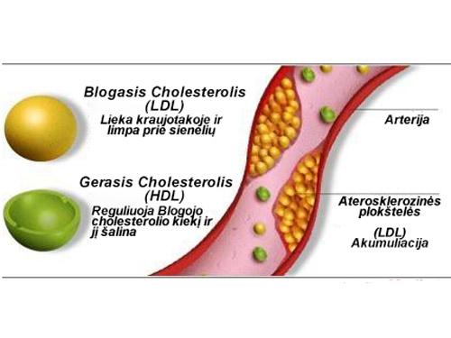 Aukštas cholesterolio kiekis: apie ką kalbama ir ką reikia daryti?