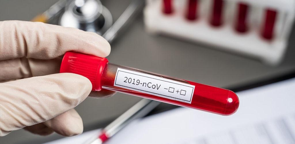 Patvirtinti koronaviruso atvejai: Lietuva – 649, Latvija – 458, Estija – 858